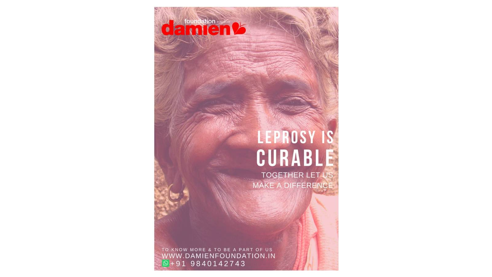 Leprosy Is Curable