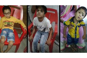 Treatment of children born with birth defects and deformities