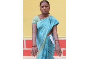 Helping an Individual suffering from Leprosy to  LIVE  a Life of Dignity